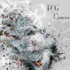 ECG Cancer